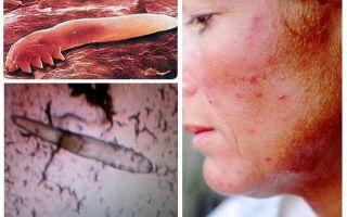 Chấy dưới da ở người trên cơ thể và đầu