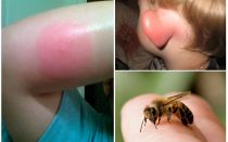 Bitten bumblebee - làm gì ở nhà