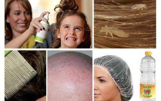 Chiến đấu pediculosis ở trẻ em và người lớn