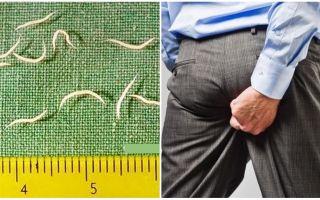 Các triệu chứng và điều trị pinworms ở người lớn