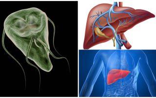 Giardia trong gan - triệu chứng và điều trị