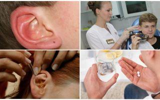 Đánh dấu vào tai của một người: triệu chứng và điều trị