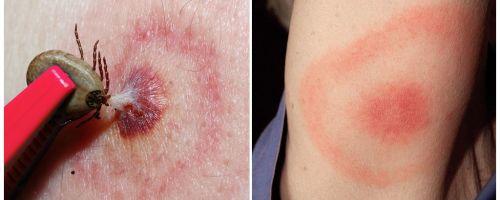 Bệnh Lyme, triệu chứng, điều trị và ảnh của nó là gì