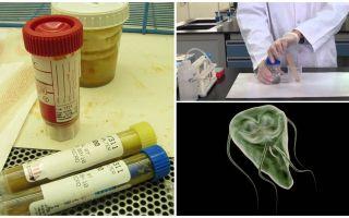 Làm thế nào để truyền đúng phân trên Giardia, phương pháp phân tích