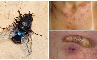 Một con ruồi đẻ ấu trùng dưới da người