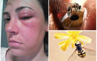 Điều gì nếu một con ong cắn vào mắt và nó sưng lên