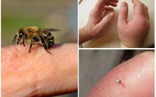 Điều gì là hữu ích bee sting cho một người?