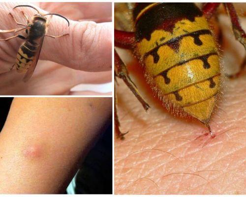 Phải làm gì nếu bị ong hornet cắn