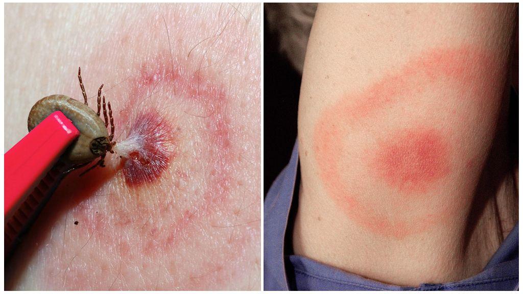 Bệnh Lyme hoặc Borreliosis do Tick-borne