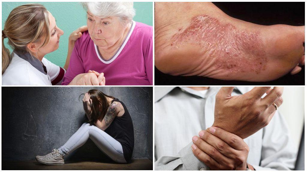 Các triệu chứng của giai đoạn mãn tính của bệnh vorreliosis