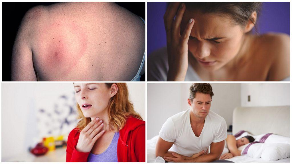 Các triệu chứng của bệnh vẩy nến
